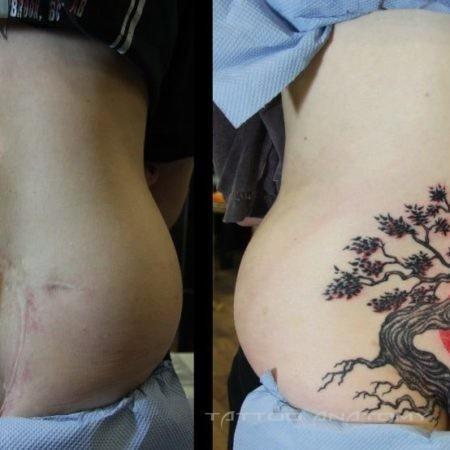 Татуировка дерево на шраме
