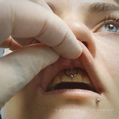 Пирсинг губы смайл